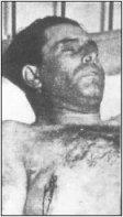 Durruti muerto en el Hotel Rice